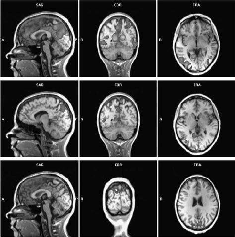 Brain activation patterns of a patient with OCD during